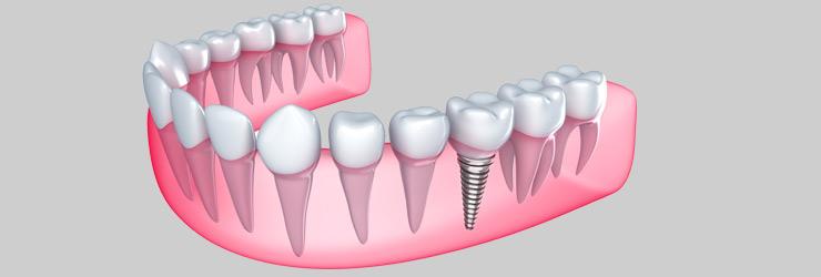 Dental Implants Hoppers Crossing