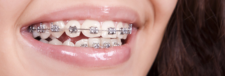 Orthodontics Tarneit & Werribee